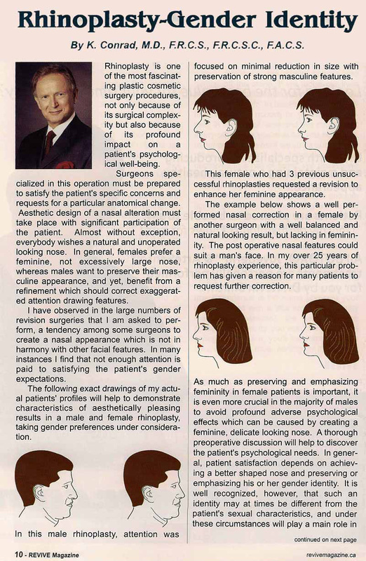 Rhinoplasty Gender Identity Article