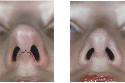 Open-vs-Closed-Rhinoplasty Center Toronto